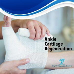 ankle cartilage regeneration