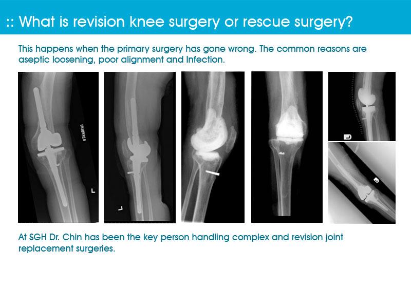 Robotic Knee Replacement Surgery | Makoplasty Singapore