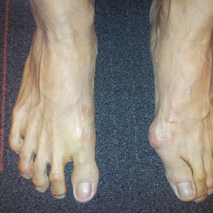 Bunion Foot Deformity