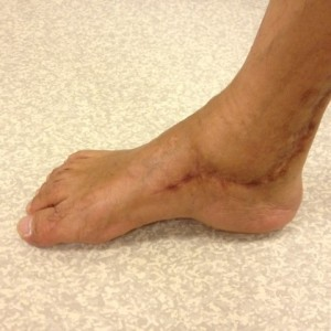 Corrected Right Hindfoot Varus Deformity (Medial View)