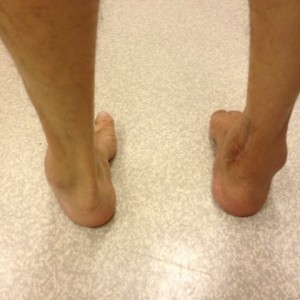 Corrected Right Hindfoot Varus Deformity (Rear View)