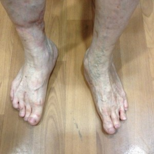 Post Op Corrected Severe Foot Deformity