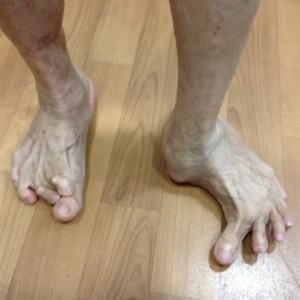 Pre Op Severe Foot Deformity