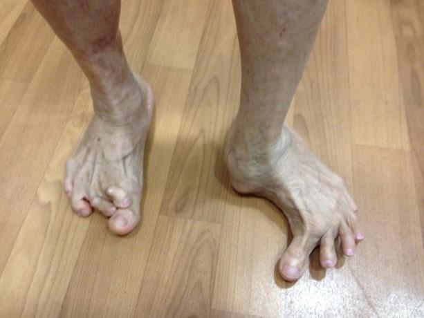 foot deformities singapore surgery reconstruction correction
