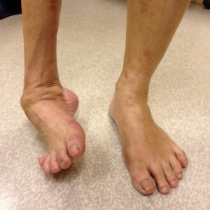 Uncorrected Right Foot Deformity