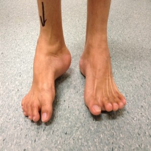Uncorrected Right Hindfoot Varus Deformity (Front View)