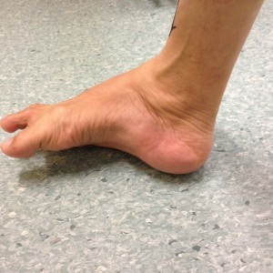 Uncorrected Right Hindfoot Varus Deformity (Medial View)