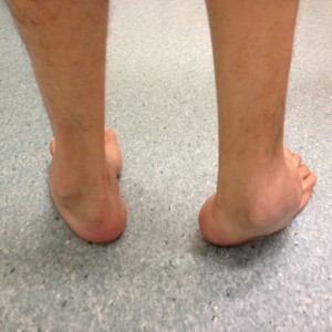 Uncorrected Right Hindfoot Varus Deformity (Rear View)